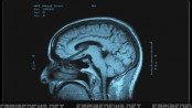 MRI Scan Reveals Crayon In Man's Brain, Doctors Say Its Been There For 40 Years