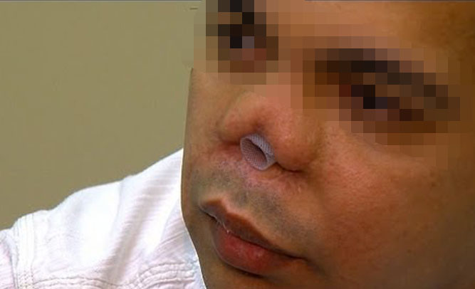 Man Cuts Off Own Nose To Spite Wife's Face