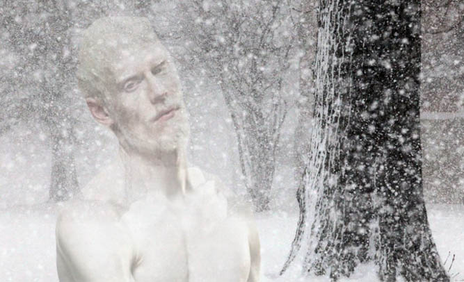 New England Albino Man Goes Missing During Snowstorm, Police Still Searching