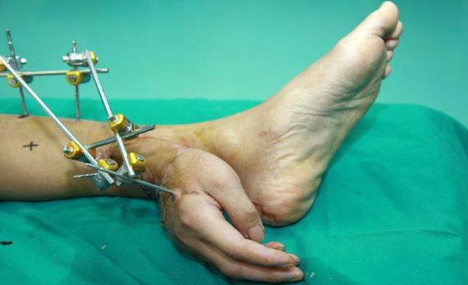 foot hand