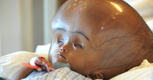 Baby Born In India With Two Brains In Same Body  Empire News-4335